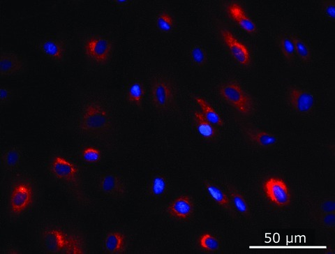 DiI-labelled MSC at passage 5. MSC DiI labelling was effective and was stable over several passages in cell culture. Nuclei are counterstained with DAPI (blue).