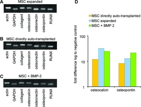 For determination of the cell type which is qualified best for bone tissue engineering purposes, different groups (expanded versus directly auto-transplanted MSC, groups 8–10) were investigated. In both groups cells were implanted subcutaneously with or without BMP-2. (A–C) The expression of bone-specific genes is proofed by RT-PCR analysis. (D) Osteocalcin and osteopontin are up-regulated in all three groups in comparison to the control group using β-TCP/HA granules with fibrinogen–thrombin matrix without growth factors or cells.