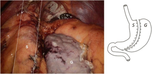 Sleeve Gastrectomy. The sleeve (S) is outlined by the dashed lines. The resected gastrectomy specimen (G) is seen on the right.
