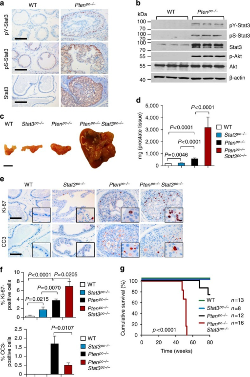 Genetic deletion of Stat3 and Pten triggers progressive prostate tumorigenesis and lethal disease.(a) Comparison of prostates from WT and Ptenpc−/− mice at 19 weeks of age using immunohistochemical (IHC) analysis of pY-Stat3, pS-Stat3 and Stat3. Scale bars, 100 μm. (b) Protein expression analysis of pY-Stat3, pS-Stat3, Stat3, p-Akt, Akt and β-actin with western blots in 19-week-old prostates from WT and Ptenpc−/− mice. (c) Gross anatomy of representative prostates isolated at 52 weeks of age from WT, Stat3pc−/−, Ptenpc−/− and Ptenpc−/−Stat3pc−/− mice. Scale bars, 10 mm. (d) Prostate weights of 52-week-old WT, Stat3pc−/−, Ptenpc−/− and Ptenpc−/−Stat3pc−/− mice (n=24). Mean values are shown; Data were analysed by one-way analysis of variance with Tukey's multiple comparison test; error bars: s.d. (e) IHC analyses of prostates from 19-week-old WT, Stat3pc−/−, Ptenpc−/− and Ptenpc−/−Stat3pc−/− mice stained for Ki-67 and cleaved caspase 3 (CC3). Scale bars, 100 μm; insets: × 600 magnification. (f) Quantification of cells positive for Ki-67 and CC3 using HistoQuest software (n=5). Data were analysed by Student's t-test and are shown as mean±s.d. (g) Kaplan–Meier cumulative survival analysis revealed a significant (P<0.0001; log-rank test) decrease in lifespan of Ptenpc−/−Stat3pc−/− compared with Ptenpc−/− mice (n=49); WT and Stat3pc−/− mice served as controls.