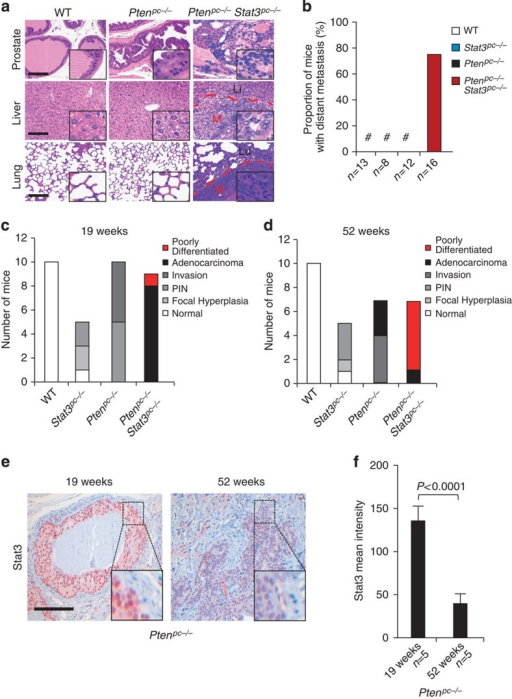 Co-deletion of Stat3 and Pten enhances prostate cancer transformation and metastatic potential.(a) Histopathological analysis of primary PCa, livers and lungs at 52 weeks of age from WT, Ptenpc−/− and Ptenpc−/−Stat3pc−/− mice. The dashed red lines encircle areas of advanced liver or lung metastases (M), which are surrounded by normal liver (Li) or normal lung (Lu), respectively. Scale bars, 100 μm; insets: × 600 magnification. (b) Percentage of mice with sites of distant PCa metastases (n=49). (c) Summary of the histological findings of mouse prostates examined at 19 weeks postpartum (p.p.) from WT, Stat3pc−/−, Ptenpc−/− and Ptenpc−/−Stat3pc−/− mice. (d) Summary of the histological findings of mouse prostates examined at 52 weeks p.p. from WT, Stat3pc−/−, Ptenpc−/− and Ptenpc−/−Stat3pc−/− mice. Histological grading and classification of mouse prostates was done according to Chen et al.67 (e) Stat3 IHC in 19-week- and 52-week-old Ptenpc−/− prostate tumours. Scale bars, 100 μm. (f) Quantification of Stat3 staining in 19-week- and 52-week-old Ptenpc−/− prostate tumours using HistoQuest software, P<0.0001. Data were analysed by Student's t-test and are shown as mean±s.d. (n=5).