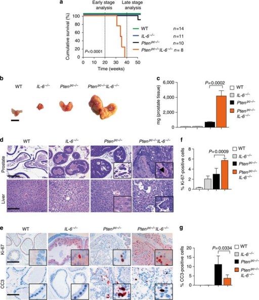 Deletion of IL-6 and Pten triggers progressive prostate tumorigenesis and metastatic disease.(a) Kaplan–Meier cumulative survival analysis of Ptenpc−/−IL-6−/− compared with Ptenpc−/− mice; WT and IL-6−/− mice served as controls (P<0.0001; log-rank test). (b) Gross anatomy of representative prostates isolated at 38 weeks of age from WT, IL-6−/−, Ptenpc−/− and Ptenpc−/−IL-6−/− mice. Scale bars, 10 mm. (c) Prostate weights of 38-week-old WT, IL-6−/−, Ptenpc−/− and Ptenpc−/−IL-6−/− mice. Mean values are shown; error bars: s.d. (n=43). (d) Histopathological analysis of haematoxilin/eosin-stained primary PCa and liver at 38 weeks of age from WT, IL-6−/−, Ptenpc−/− and Ptenpc−/−IL-6−/− mice. Arrowhead in the inset: area of nerve sheet infiltration. Scale bars, 100 μm. (e) IHC analysis of Ki-67 and CC3 in prostates from 19-week-old WT, IL-6−/−, Ptenpc−/− and Ptenpc−/−IL-6−/− mice. Scale bars, 100 μm. (f,g) Bar graphs indicate percentage of cells positive for Ki-67 and CC3 (e). Protein levels quantification was done with HistoQuest software (n=5). Data from c, f and g were analysed by Student's t-test and are shown as mean±s.d.