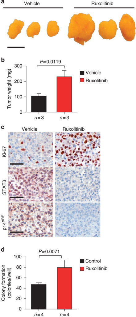 JAK1/2 inhibition promotes tumour progression and decreases STAT3 and p14ARF expression.(a) Gross anatomy of representative LNCaP xenograft tumours treated with ruxolitinib. Mice bearing xenografts were treated with a vehicle or 50 mg kg−1 ruxolitinib. Scale bars, 10 mm. (b) Tumour weight of vehicle-treated mice versus ruxolitinib treatment for 22 days of age-matched SCID beige mice. Mean values are shown; error bars: s.d. (n=3). (c) IHC stainings of Ki-67, STAT3 and p14ARF expression in vehicle versus ruxolitinib-treated xenografted tumours (n=3), scale bar 50 μm. (d) LNCaP cells treated with control (DMSO) or 10 μM ruxolitinib were grown in soft agar for 12 days. Mean values are shown; error bars: s.d. (n=4). Data from b and d were analysed by Student's t-test.