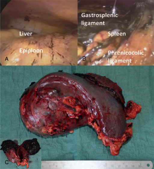 (A) Intraoperative findings of focal peritoneal melanosis on the epiploon and on the peritoneal surface of the right diaphragmatic peritoneum; (B) massive amount of peritoneal melanosis around the spleen, on gastrosplenic and phrenicocolic ligaments; (C) Surgical specimen showing a large brownish irregular round mass that protrudes above the surface at the upper pole of the spleen; a cut surface shows the dishomogeneous appearance and the intense dark brown color of the lesion, with soft solid component and areas of colliquation.