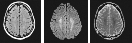 MRI brain—bilateral centrum semiovale infarcts. Corresponding abnormalities in the centrum semiovale bilaterally consistent with acute infarction.