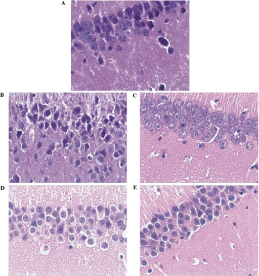Hematoxylin and eosin staining (magnification, ×400) of the (A) control; (B) APP/PS1 model; (C) APP/PS1 plus donepezil; (D) APP/PS1 plus low dose GSPA (50 mg/kg/day); and (E) APP/PS1 plus high dose GSPA (100 mg/kg/day) groups. APP, amyloid precursor protein; PS1, presenilin-1; GSPA, grape seed proanthocyanidin.