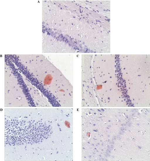 Congo red staining (magnification, ×200) of the (A) control; (B) APP/PS1 model; (C) APP/PS1 plus donepezil; (D) APP/PS1 plus low dose GSPA (50 mg/kg/day); and (E) APP/PS1 plus high dose GSPA (100 mg/kg/day) groups. APP, amyloid precursor protein; PS1, presenilin-1; GSPA, grape seed proanthocyanidin.