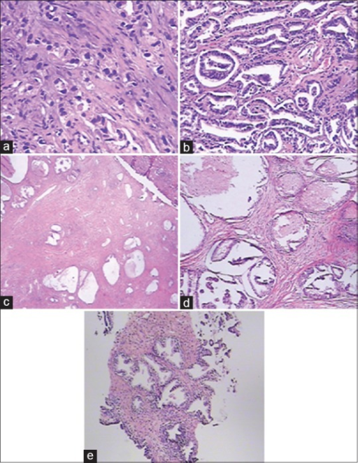 Pathological characteristics of prostate cancer, (a) prostate cancer; (b) benign prostatic hyperplasia with atypical small acinar proliferation; (c) benign prostatic hyperplasia with prostatic intraepithelial neoplasia; (d) benign prostatic hyperplasia with chronic prostatitis; (e) benign prostatic hyperplasia