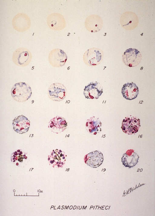 <p>Microscopic views illustrating the stages of growth of a malarial parasite.  (1) A normal red cell; (2-11) trophozoites; (12-18) schizonts; (19) macrogametocyte; (20) microgametocyte.</p>