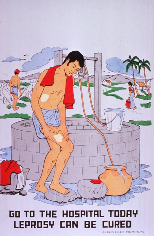 <p>Predominantly white poster with black lettering.  Visual image is a color illustration of a man bathing near a well.  He has ulcers on his torso and thigh.  Title below illustration.  Publisher information in lower right corner.</p>