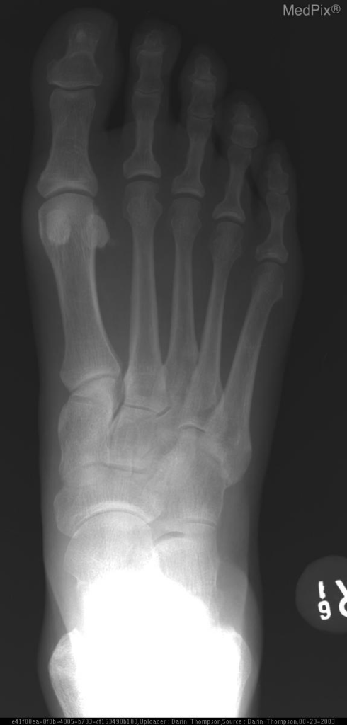 Plain film shows subtle linear sclerosis accross lateral cuneiform bone suggestive of stress fracture.
