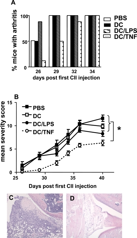 Immunotherapy of murine inflammatory arthritis. Groups of 8 mice were injected sc at the base of tail with 1 x 106 untreated,LPS activated or TNF-α  treated DC 3 days prior to immunization with CII in CFA and again 3 days before the booster immunisation.Control mice received injections of PBS. Mice were scored for clinical signs of disease until day 40. (A) The % of mice with arthritis in each group over time. (B) The mean arthritis severity score in each group over time. *= p < 0.05 by Mann Whitney test. (C) Transverse section through stifle joint of PBS treated mouse stained with H&E demonstrating inflammatory cell infiltration. (D) Transverse section through stifle joint of TNF-αtreated DC injected mouse indicating much reduced cellular infiltration. Magnification x10.