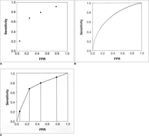 ROC curves from a plain chest radiography study of 70 patients with solitary pulmonary nodules (Table 3).A. A plot of test sensitivity (y coordinate) versus its false positive rate (x coordinate) obtained at each cutoff level.B. The fitted or smooth ROC curve that is estimated with the assumption of binormal distribution. The parametric estimate of the area under the smooth ROC curve and its 95% confidence interval are 0.734 and 0.602 ~ 0.839, respectively.C. The empirical ROC curve. The discrete points on the empirical ROC curve are marked with dots. The nonparametric estimate of the area under the empirical ROC curve and its 95% confidence interval are 0.728 and 0.608 ~ 0.827, respectively. The nonparametric estimate of the area under the empirical ROC curve is the summation of the areas of the trapezoids formed by connecting the points on the ROC curve.