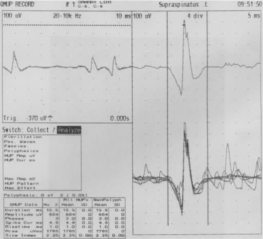 prednisone 10mg for nerve pain