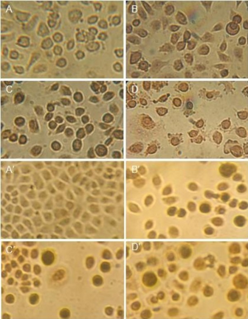Nuclei morphological changes during PTO and DDPT-induced apoptosis in PC3 and Bcap-37 cells detected by TUNEL assay. Tumor cells treated with PTO and DDPT (20 μM) were assayed by TUNEL and observed under light microscopy. For PC3 cells group, A: negative control (without treatment); C: positive control, treated with HCPT (20 μM) for 24 h; B and D: treated with PTO and DDPT (20 μM) for 24 h; For Bcap-37 cells group, A': negative control (without treatment); C': positive control, treated with HCPT (20 μM) for 24 h; B' and D': treated with PTO and DDPT (20 μM) for 24 h.