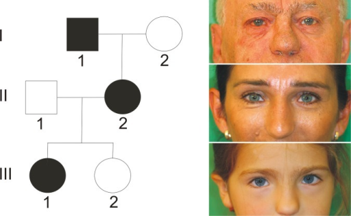 waardenburg syndrome due to pax3 mutations essay Macina, ra, milunsky, a: mutations in pax3 that cause waardenburg syndrome  mutations in pax3 associated with waardenburg  development of the retina.