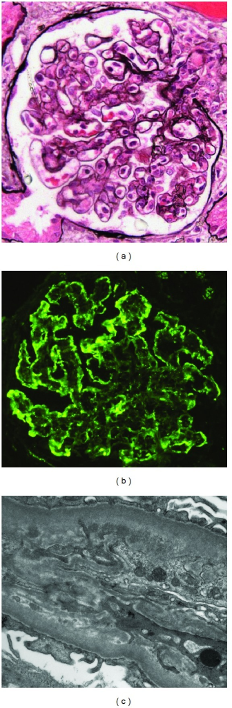 Glomerular renal biopsy findings. (a) Mesangial and endocapillary hypercellularity with a lobular pattern and segmental capillary double contours (periodic acid methenamine silver ×400). (b) Peripheral granular staining for C3 (×400). (c) Capillary wall subendothelial electron dense deposits with peripheral mesangial migration and new subendothelial basement membrane material forming a double contour (×19,000).