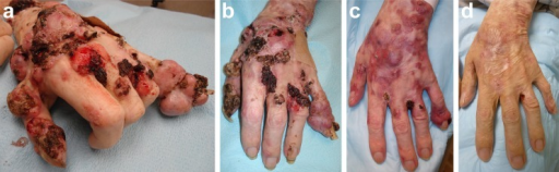 a Bulky BCC tumors on dorsal hands and fingers prior to treatment with vismodegib. b After 4 weeks of vismodegib therapy, shrinkage of the BCCs was clinically evident. c After 6 months of vismodegib therapy, the BCCs continued to regress. d After 3 years of vismodegib therapy, the BCCs were nearly eradicated without surgery. a has previously been published in Gomez-Ospina et al [2]