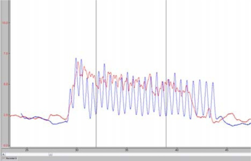 Force during tethered swimming: alternate (red) and simultaneous (blue) eggbeater kicks. Vertical lines mark the interval where the force was measured.