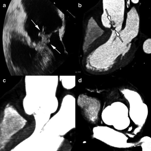 Results of echocardiography and MSCT studies in a case of aortic valve IE. The TEE study, 120-degree long-axis view (a) and MSCT acquisition with MPR reconstructions in the LVOT view (b), show a huge vegetation on the aortic valve (white arrows). MSCT acquisitions with MPR in the LVOT view (c) on the level of aortic annulus (d) are displayed in a narrowed imaging window, suitable for analysing para-valvular tissue, and show an abscess located in the anterior part of the aortic root (black arrows)