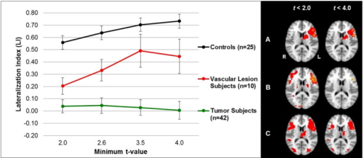 Average hemispheric LIs (left) and group activation (right) for letter-word generation task in the control, tumor, and vascular lesion patient groups. Left: the average LIs for tumor patients (n = 42), vascular lesion patients (n = 10), and controls (n = 25), from the letter-word generation task, are shown at different threshold values for the hemispheric mask. Tumor patients show bilateral dominance regardless of t-value. Tumor patient LIs are significantly different from control LIs at each threshold (ps < 0.0125, Table 5). Vascular lesion patients show bilateral dominance at t < 2.0 and left lateralization at t < 4.0. Vascular lesion patient LIs are significantly different from control LIs at at t < 2.0 (p < 0.0125, Table 5). The control group maintains left lateralization despite variable threshold effects. Right: images display the group activation maps at low threshold values (ts < 2.0) and at higher threshold values (ts < 4.0). The control subjects (A) show average left language lateralization, the vascular lesion patients (B) show average bilateral and left-lateral dominance, and the tumor patients (C) show average bilateral dominance during the letter word generation task.