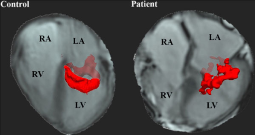 Vortex ring core in a control and a patient during E-peak. In the patient a more tilted (orientation 37 degrees) and more lateral positioned (R = 0.39) vortex was observed. RA = right atrium, RV = right ventricle, LA = left atrium, LV = left ventricle.