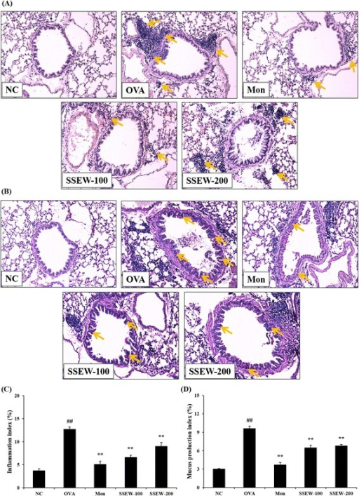 Effect of SSEW on airway inflammation and airway goblet cell hyperplasia in the lung tissues of OVA-induced mice. Lung tissues were stained with (A) H&E solution and (B) PAS. The panel is magnified (200 ×). Representative photomicrographs of lung sections are shown. Yellow arrows indicated as airway inflammation and mucus production. (C) Inflammation and (D) mucus production index were determined using an image analyzer, respectively. NC, normal control group (vehicle); OVA, OVA-induced group (control); Mon, montelukast (30 mg/kg) + OVA-induced group (positive control); SSEW-100, SSEW (100 mg/kg) + OVA-induced group; SSEW-200, SSEW (200 mg/kg) + OVA-induced group. The values represent the mean ± S.E.M (n = 3/group). Significant differences at ##P < 0.01 compared with the NC group. Significant differences at **P < 0.01 compared with the OVA-induced group.