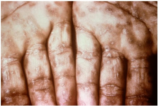 An example of secondary syphilis provided by the CDC: a close-up view demonstrating keratotic lesions on the palms.