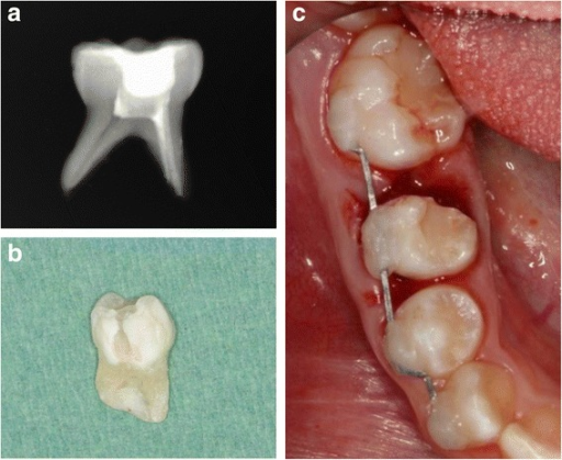 Induced ankylosis technique a extraoral root canal treatment of the mesial root of the primary tooth, b hemisectomy of the primary tooth, and c replantation of the mesial part and splinting