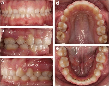 Clinical examination after the completion of orthodontic treatment showing the 1st permanent molar in the position of the 2nd premolar a frontal view, b right lateral view, c left lateral view, d maxillary occlusal view, and e mandibular occlusal view