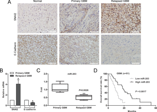 Downregulation of miR-203 correlates with chemotherapy resistance and poor patient survival in GBM(A) Expression of SNAI2 and E-cadherin in resected human GBM specimen was assessed by immunohistochemistry assay. Scale bar, 100 μm. (B) Average expression levels of SNAI2 and E-cadherin in human primary GBM specimens and relapsed GBM tissues. (C) The expression of miR-203 was significantly reduced in relapsed GBM patients. (D) Kaplan-Meier overall survival curve according to miR-203 expression levels in GBM patients (p = 0.0017). *P < 0.05, **P < 0.01.