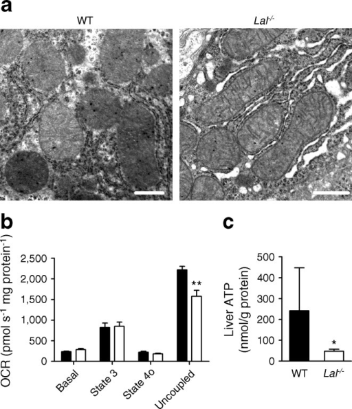 Intact mitochondria and reduced ATP concentrations in Lal-/- livers. (a) Electron micrographs of mitochondria in livers of WT and Lal-/- mice aged 12 weeks; scale bar, 0.5 μm. (b) Mitochondrial respiration of mitochondria isolated from WT and Lal-/- livers (n = 4–6) using 10 mmol/l succinate/1 μmol/l rotenone as substrates. Oxygen consumption rate presented as basal mitochondrial respiration in the presence of substrates (basal), increased mitochondrial respiration due to ADP supply (state 3), after ATP synthase inhibition by oligomycin (state 4o) and after carbonyl cyanide p-trifluoromethoxyphenylhydrazone addition (uncoupled). (c) Liver ATP concentrations determined by liquid chromatography-tandem mass spectrometry (n = 5–6 mice aged 8–12 weeks). Data represent means ± SD; *p < 0.05, **p ≤ 0.01, Student's unpaired t test. Black bars, WT mice; white bars, Lal-/- mice. OCR, oxygen consumption rate