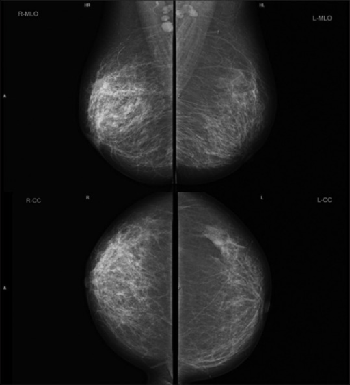 Mediolateral oblique and craniocaudal mammographic views of the right breast reveals marked increased trabecular markings in the upper outer quadrant of the right breast and prominent lymph-node with attenuated hilum in the right axilla. Left breast is unremarkable (Breast Imaging Reporting and Data System 1)