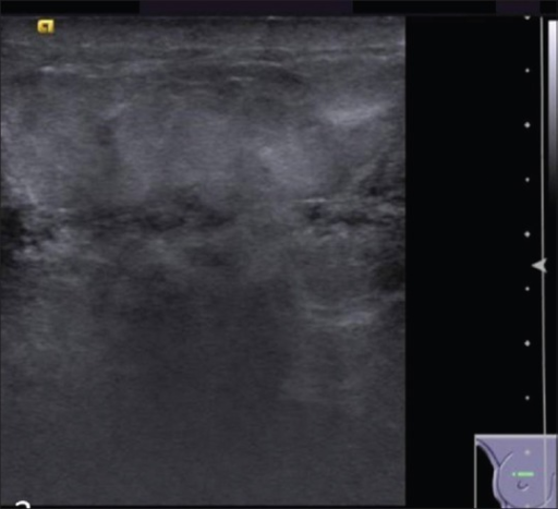 Ultrasound of right breast shows hyper-reflective breast parenchyma with skin thickening and multiple prominent ducts and its branches with wall thickening and internal echoes