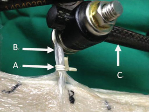 A rubber strip is wrapped 3 times around each pin outside the plastic drape, and tied tightly: (A) rubber strip, (B) pin wrapped with adhesive plastic drape, (C) rod of the fixation device.
