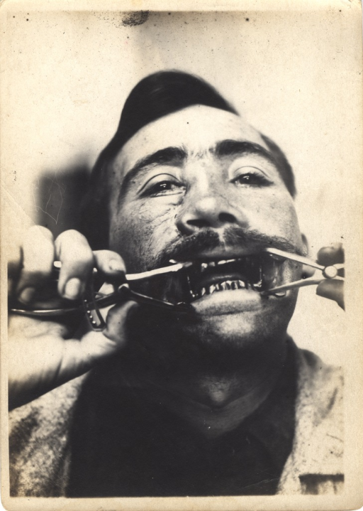 <p>Black and white photograph of injured soldier with massive injuries to the mouth. The soldier is prying his mouth open with an instrument to show the teeth.</p>