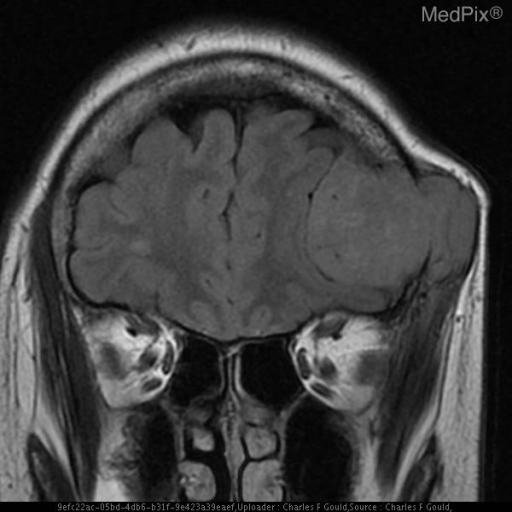 Large expansile mass lesion which is hypointense to bone marrow extending intracranially from the frontal clavarium.