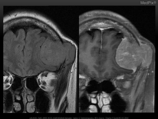 Expansile mass which is isointense to bone marrow extending both intracranially and superficially from the calvarium.