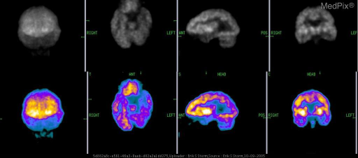 Three plane F-18 FDG tomographic images of the brain.  Patient has refractory seizures.  Note the hypometabolism present within the left hippocampus (best seen on the representative coronal slice).