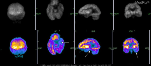 Three plane 18FDG tomographic images of the brain.  Patient has refractory seizures.  There is hypometabolism in the left hippocampus (arrows).  Interictal (between seizure) hypometabolism may help localize a seizure focus, but may also occur with tissue loss (gliosis, mesial temporal sclerosis).