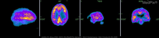 18FDG PET tomograms of the brain demonstrate bilateral parietal lobe hypometabolism relative to the surrounding lobes.