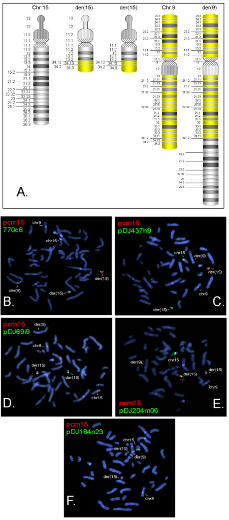 Characterization of translocation chromosomes by metaphase FISH. The two der(15) chromosomes revealed hybridization signals for clones up to BP4 and no signal distal to BP5. Der(9) chromosome revealed hybridization signal for pDJ184n23, which is distal to BP5. A) Schematic representation of chromosomes 9, 15 and the derivative chromosomes. In panels B-F, red signals represent pcm15, a chromosome 15 centromere probe. The positions of the other clones used for FISH are shown in Figure 2A. Chromosomes 9, 15 and the derivative chromosomes are indicated in each panel. B) Green signals represent clone 770c6, which lies in proximal to BP2. C) Green signals represent clone pDJ437h9, which lies in the BP2-BP3 interval. D) Green signals represent clone pDJ9i9, a BP2-BP3 probe that lies just proximal to BP3. E) Green signals represent clone pDJ204m06, which lies between BP3-BP4. F) Green signals represent clone pDJ184n23, which lies distal to BP5.
