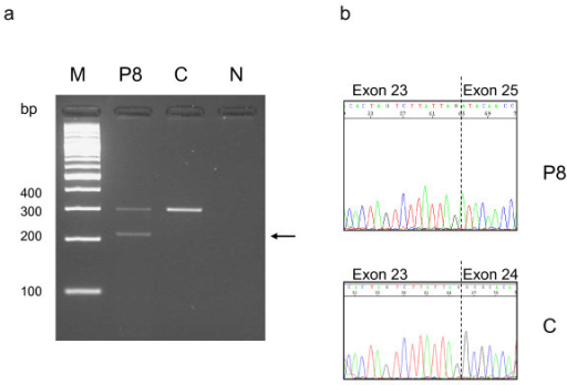 RT-PCR analysis in patient 8 (mutation c.2302 + 5 G > A), showing exon skipping and aberrant transcript. a. RT-PCR products were amplified from cDNA of patient 8 and from one healthy individual using primers in exon 23 and in exon 25. The arrow indicates an aberrant sized product in patient 8 in addition to normal sized transcript observed in patient 8 and in healthy control. M marker, P8 patient 8, C control, N negative control. b. The PCR products were purified and sequenced. Sequence chromatograms from normal sized amplicon with normal sequence exon 23-24-25, and from abnormal amplicon, showing absence of exon 24.