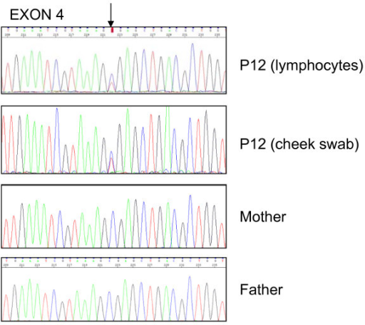 Sequence analysis of exon 4 amplified from DNA obtained from lymphocytes and cheek swab of patient 12 and from lymphocytes of his parents. The upper two sequence profiles (patient) show low signals for the mutant variant superimposed on the wild-type sequence (arrow). The lower two sequence profiles (parents) show the wild type sequence.