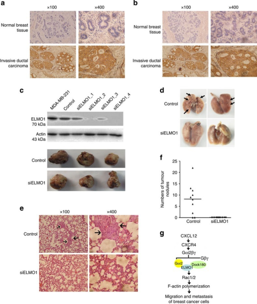 ELMO1 has a role in breast cancer metastasis in vivo.(a) Immunohistochemical analysis of ELMO1 expression in invasive ductal breast carcinoma tissues and normal breast tissues. The entire sample (81 invasive ductal breast carcinoma tissues and 7 normal breast tissues) was blocked for 1 h. The antibodies and the dilution factors were as follows: ELMO1 (1:100), Polink-2 plus Polymer HRP Detection System for Goat Primary Antibody. (b) Immunohistochemical analysis of ELMO2 expression in invasive ductal carcinoma tissues and normal breast tissues. The entire sample (81 invasive ductal breast carcinoma tissues and 7 normal breast tissues) was blocked for 1 h. The antibodies and the dilution factors were as follows: ELMO2 (1:50), Polink-2 plus Polymer HRP Detection System for Goat Primary Antibody. (c) Western blotting analysis for four stable siELMO1 clones and comparison of tumour size in SCID mice. (d) Comparison of spontaneous lung metastasis and images of representative lung metastasis. (e) Human tumour foci on mouse lungs were visualized by haematoxylin and eosin staining. (f) The number of lung metastases was counted and plotted (n=10). (g) A model for ELMO1 regulated the migration and chemotaxis of breast cancer cells by associating with Dock180, Gαi2, Rac1 and Rac2.