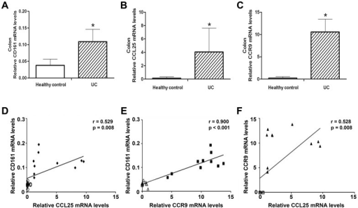 Expression of CD161, CCL25 and CCR9 in UC and healthy controls.The mRNA levels of CD161 (A), CCL25 (B) and CCR9 (C) were significantly increased in the UC patients compared to the healthy controls. n = 10 per group, *p<0.05 versus the healthy controls. D and E. CD161 mRNA expression was positively correlated with CCL25 mRNA and CCR9 mRNA expression. F. The mRNA level of CCR9 had a positive correlation with the mRNA level of CCL25. Each data point represents one colonic biopsy specimen in each panel, and each panel includes data from all colonic biopsy specimens in our experiments. Different symbols are used for UC patients and healthy controls in each panel. Data were analyzed by Pearson's correlation coefficient.