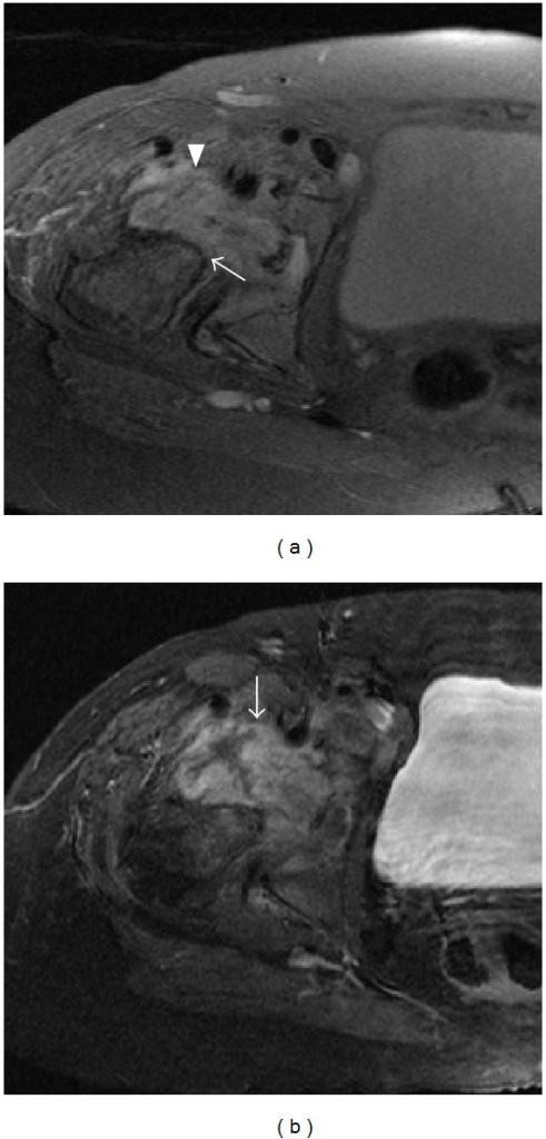 (a) Axial proton density with fat saturation sequence through the right hip joint (a) shows destruction of the femoral head (arrow) and a complex joint effusion (arrowhead). (b) Axial T1 fat saturated sequence after gadolinium reveals synovial thickening and enhancement (arrow).