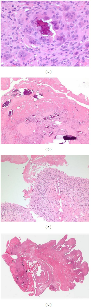 (a) Papillary, hyperplastic, chronically inflamed synovium is shown with abundant fibrin covering the surface and multiple fragments of bone being degraded by histiocytes and multinucleated giant cells. (b) At higher magnification, fibrin is seen on the surface of the synovium with a hyperplastic synovium consistent with chronic inflammation. (c) Fibrin and bone are detailed at 40x magnification showing multiple bone fragments which is typical of a rapidly destructive joint process. (d) Bone is seen being further broken down by multinucleated giant cells.