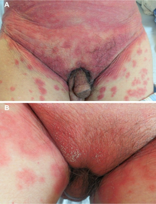 (A) Erythema and lots of tiny pustules on the abdomen. (B) Many pustules on the basis of erythema on the lower abdomen.