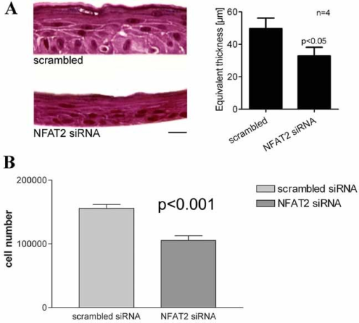 NFAT2 knockdown by siRNA reduces cell number and reduces epidermal thickness in an in vitro epidermal equivalent model. A: Keratinocytes were transfected with either scrambled RNA or with NFAT2 siRNA and then grown as an in vitro epidermal skin equivalent. The NFAT2 siRNA group resulted in a thinner epidermis than control (P < 0.05). B: Cell counts confirmed that NFAT2 siRNA reduced keratinocyte proliferation (P < 0.001).